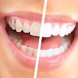 teeth whitening with our dentists in winchmore hill