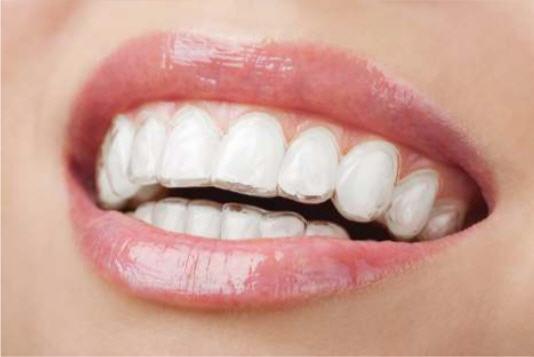 Orthodontics - Fenton Dental Studio