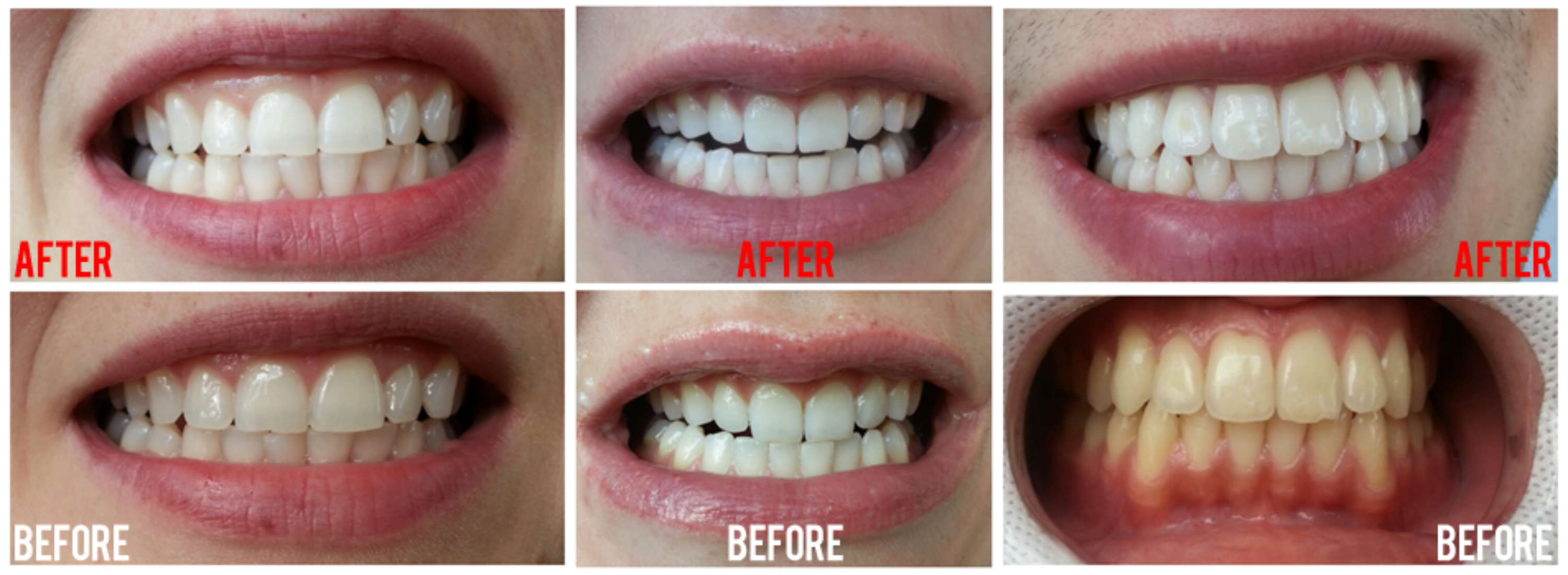 Tooth Whitening Fenton Dental Studio